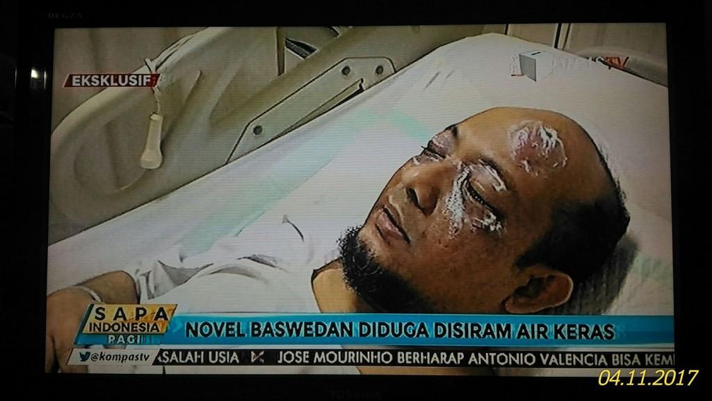 Kondisi Novel Baswedan saat dirawat di RS Mitra Keluarga Kelapa Gading usai mengalami serangan air keras | Kompas Tv